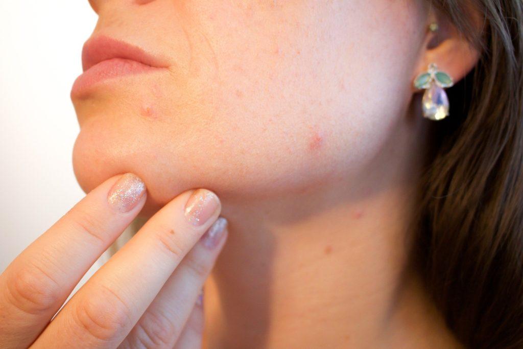 Effectieve medicatie tegen acne